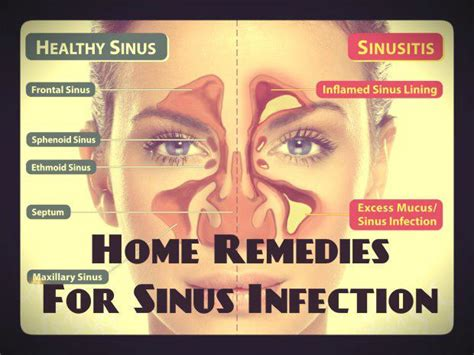 Sinus Cure home remedies for sinus infection sinus