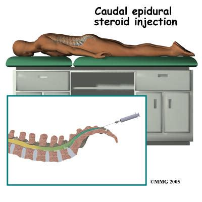 caudal epidural side effects answers on healthtap
