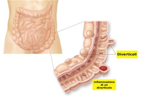 alimentazione per diverticoli colon la malattia diverticolare e la diverticolite colon