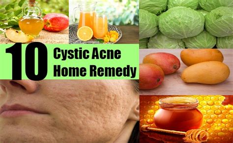 acne home remedies cystic acne pictures posters news and videos on your