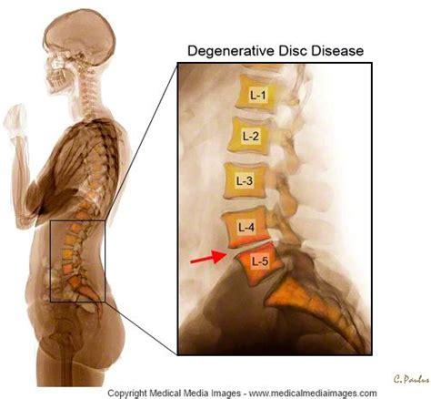 severe neck pain after c section pictures severe disc degeneration c5 6 anatomy diagram