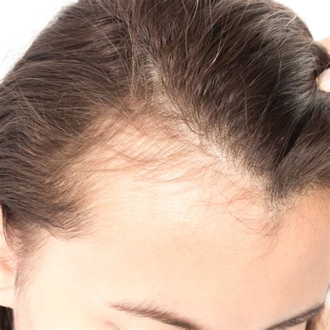 hair loss behind the ears in women how to deal with hair shedding in the fall why is my hair