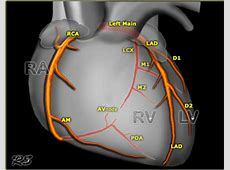 cardiac anatomy and physiology revision :: www.forensicmed ... Radiologyassistant Nl