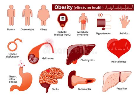 weight management and obesity obesity and overweight infographic stock vector