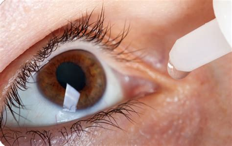 glaucoma alimentazione glaucoma cos 232 risparmio in salute