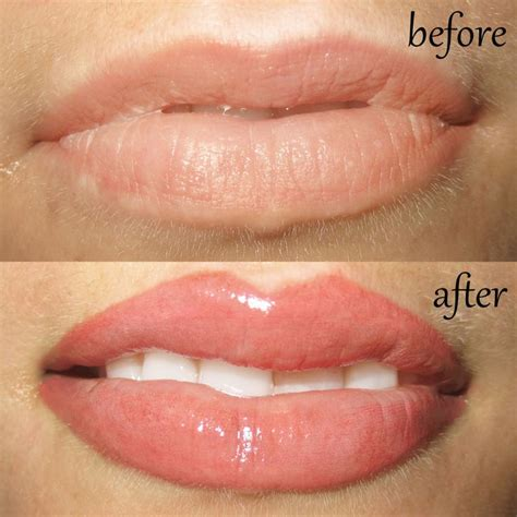 lip tattoo removal 25 best ideas about lip liner on