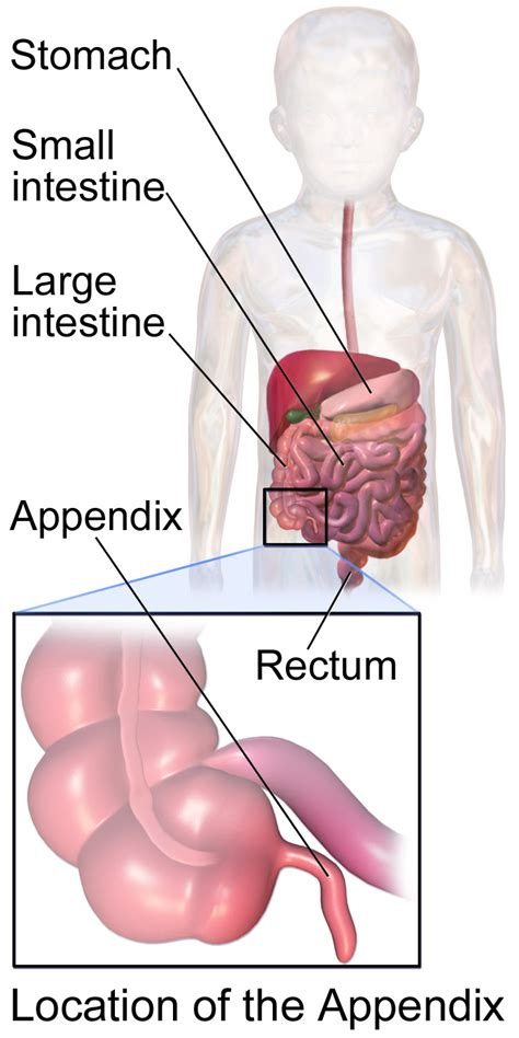 appendix diagram appendicitis location diagram harry houdini elsavadorla