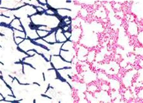 gram positive color 1000 images about science on stains