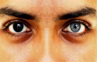 permanent eye color surgery eye surgery with permanently eye color change change eye