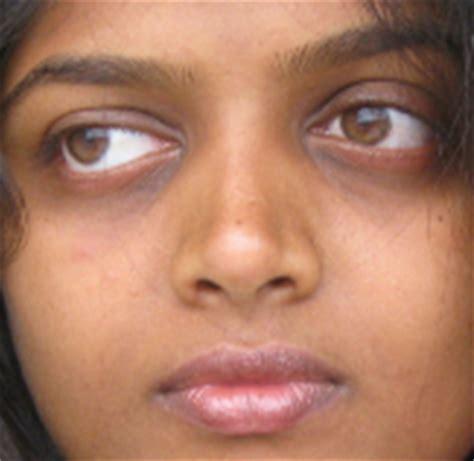 black under eye home remedies to get rid of dark circles under eyes medimiss