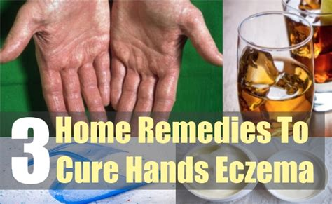 how to cure eczema home remedy for eczema
