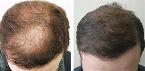 can hot water damage fue hair grafts case study 1582 fue hair grafts diffuse hair loss