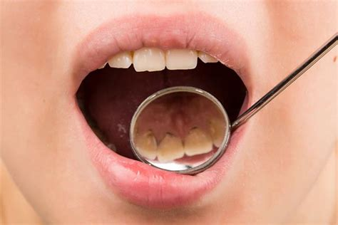 removing plaque from s teeth top 10 simple ways to remove plaque from your teeth at home