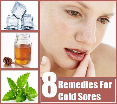 8 home remedies for cold sores health care