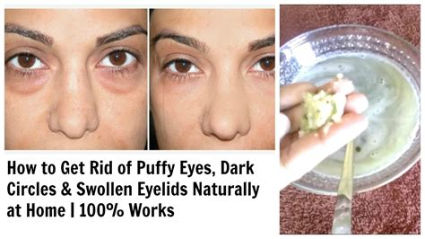 Get Rid Of Eye Circles Right In The Comfort Of Your Own Home by Get Rid Of Circles Swollen Eyelids