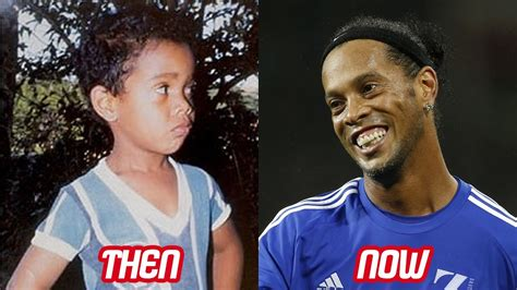 Ronaldinho Transformation Then And Now (Face & Teeth