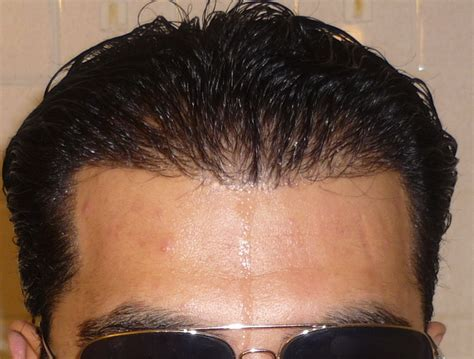 rogaine success photos rogaine success pictures hairstyle gallery