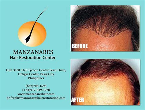 hair transplant cost in the philippines hair transplant costs in the philippines lowest price of