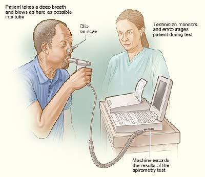Baron Lung copd diagnosis stages expectancy study