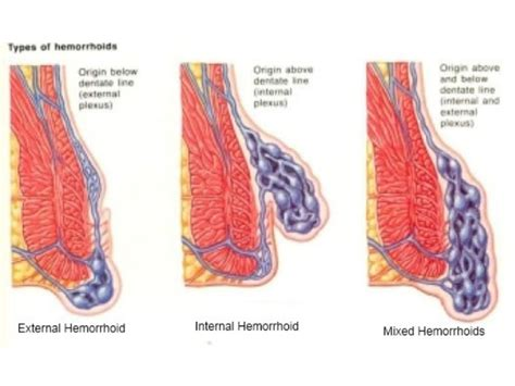Do Hemorrhoids Cause Blood In Stool by Bright Blood In Stool After Surgery Foods To Thin Blood