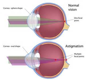 Lenses For Color Blindness Correction Astigmatism Castle Hill Optometrist Vision Excellence