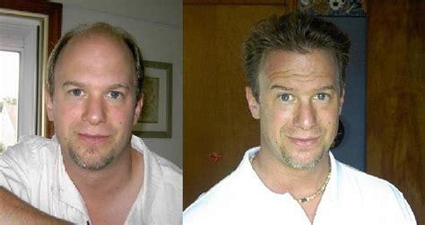 is hair transplant safe good hair transplants www pixshark com images