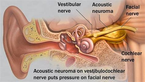 best acoustic neuroma surgeons acoustic neuroma symptoms surgery treatment and