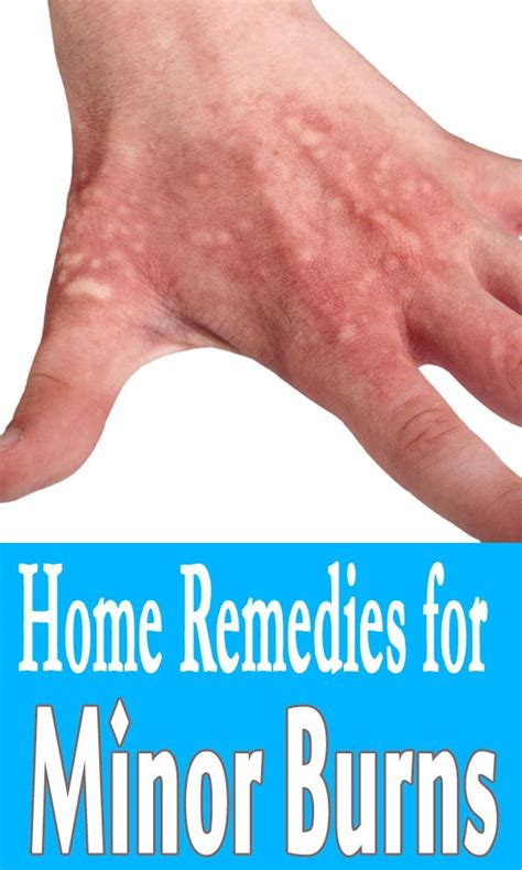 9 home remedies for minor burns remedies
