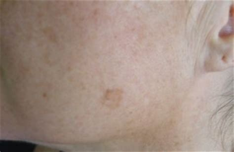 light brown spots on skin home microdermabrasion at home kits