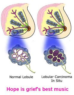 mammary tumor removal cost posts tagged with belongs what system help heal your gallbladder