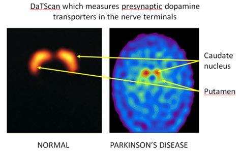 test parkinson dat scan new diagnostic test for parkinson s disease pd