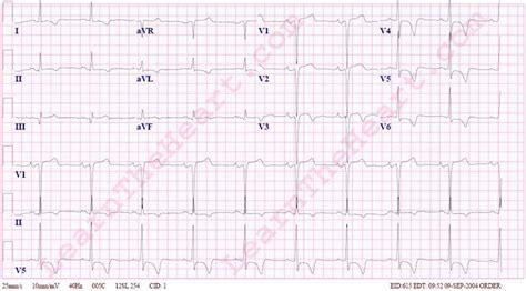 lvh pattern left ventricular hypertrophy lvh with repolarization