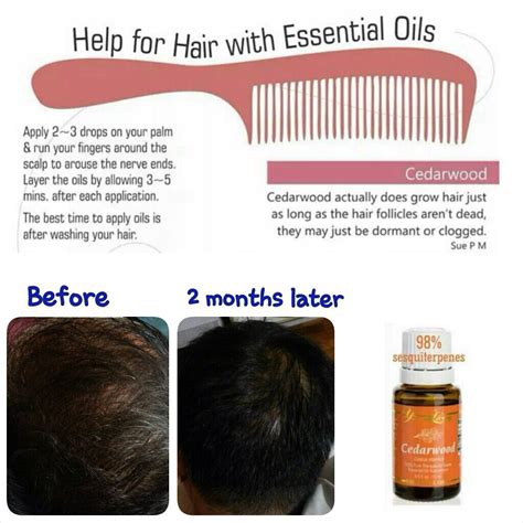 Hairgrowth With Cedarwood Essential Oil Before And After Pics | aroma complete day 10 cedarwood life by the waterside