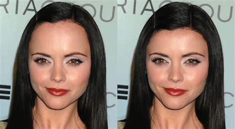 forehead surgery before and after cosmetic surgery connoisseur christina ricci with a