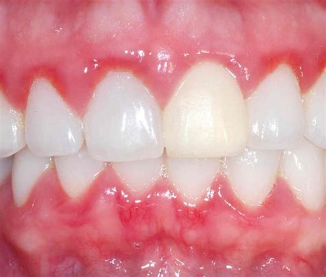 what color should gums be pink gums answers on healthtap