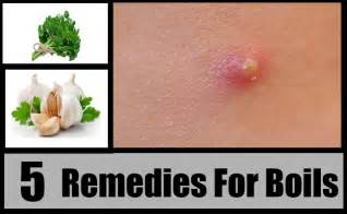 5 herbal remedies for boils natural treatments amp cure
