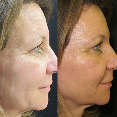 most flattering hairstyle for sagging neck jowl u0026 neck lift tighten the face and jaw austin yoga