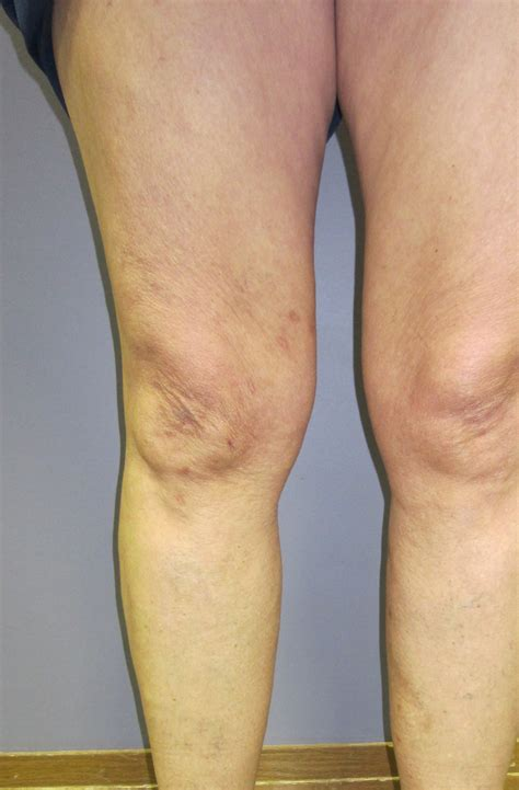 itchy legs causes and treatment healthhypecom