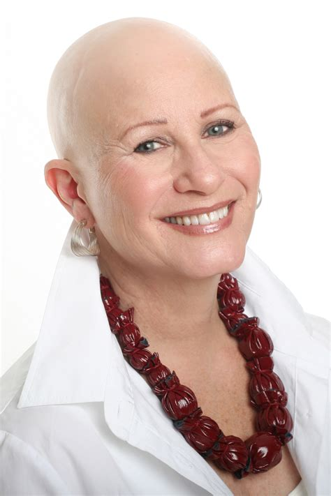 with no hair hair loss not just a s issue patient advice us news