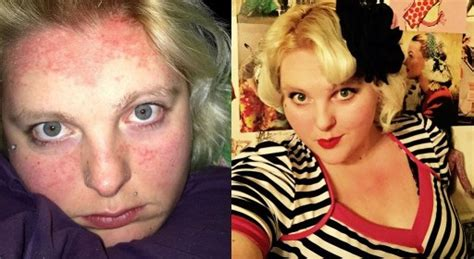 how does psoriasis effect hairstyle psoriasis forget the box