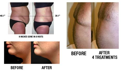 Lipo Light Reviews by Lipo Light Path Integrative Health Center