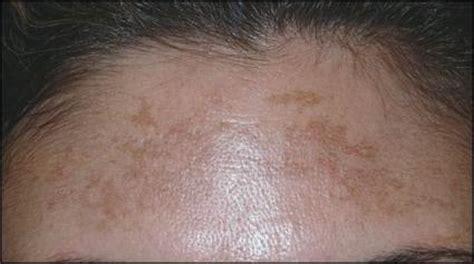 Melasma 5 In 1 treatment for melasma skinaesthetics sg