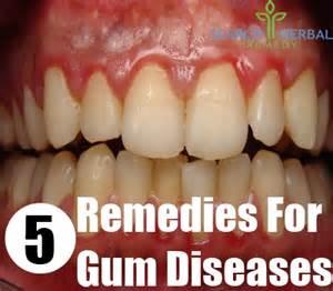 home remedies for gum disease 5 herbal remedies for gum diseases gum diseases