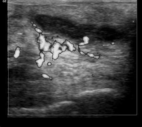 pilonidal cyst ultrasound pilonidal sinus with abscess formation image