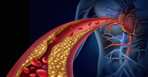 alimenti dannosi per il colesterolo cosa c 232 nei cornetti e nelle brioche bar l inchiesta