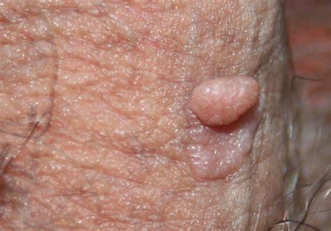sintomi condilomi interni escrescenze sul apparato urinario e genitale