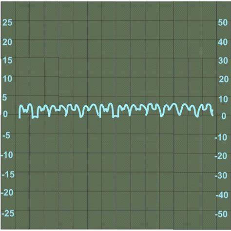 alternator troubleshooting with an oscilloscope