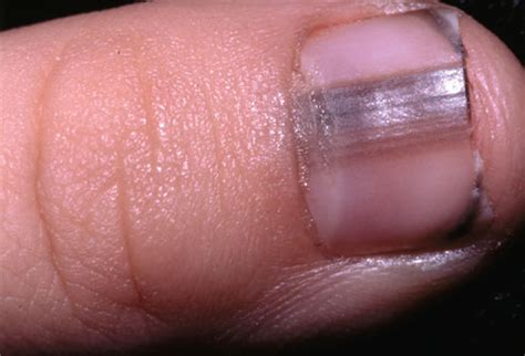dark line on fingernail healthy life september 2011