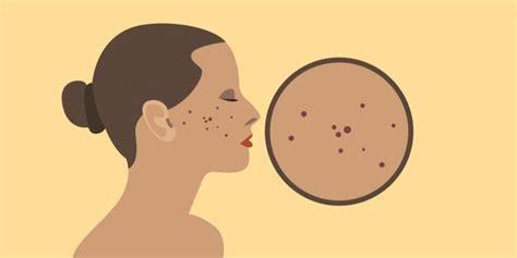 mengenal penyebab jerawat  letaknya  wajah merdekacom