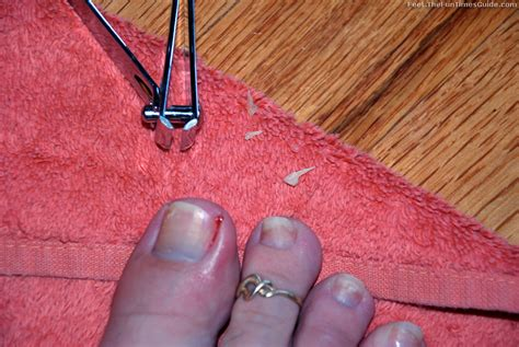 photos of the best diy ingrown toenail treatment